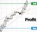Forex Trading Articles - Don't Be Mental With Your Stops